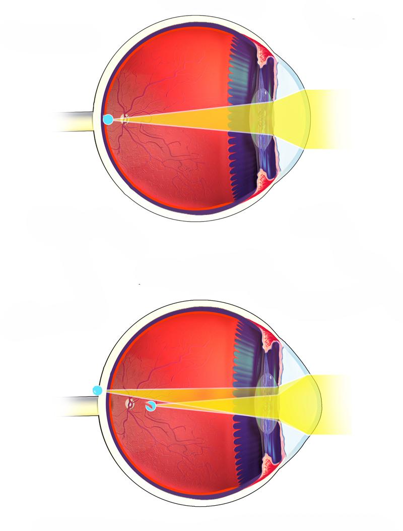 1579262931_astigmatism.jpg